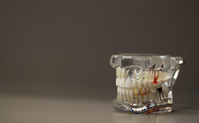 Zła dieta odżywiania się to większe niedostatki w jamie ustnej oraz dodatkowo ich utratę